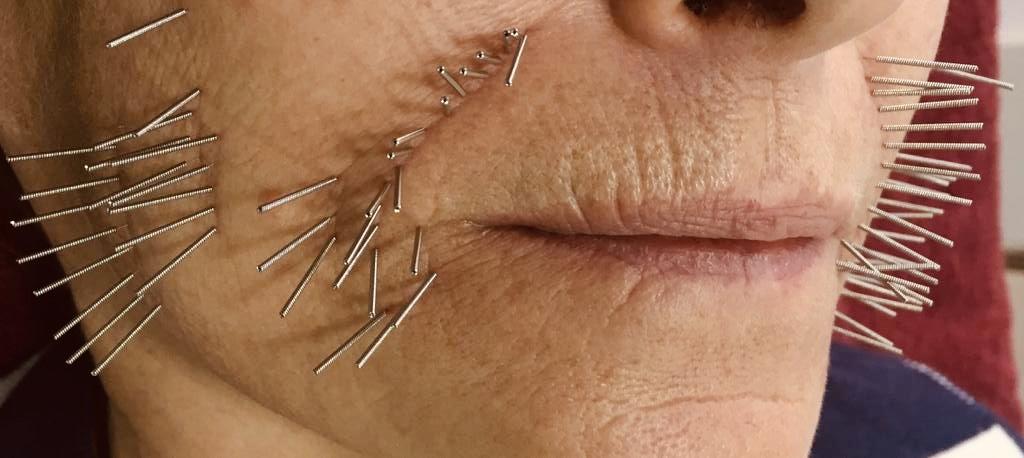 Curso de Lifting Facial por electro-acupuntura